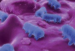 Masivní úbytek tekutin a minerálních látek může způsobit